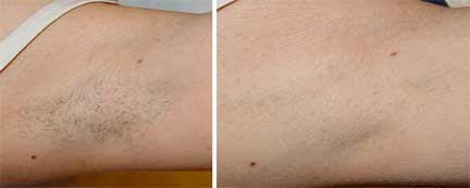 laser-hair-removal-ba